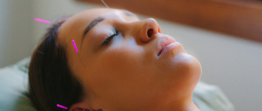 Body and Soul Acupuncture Kedron 2